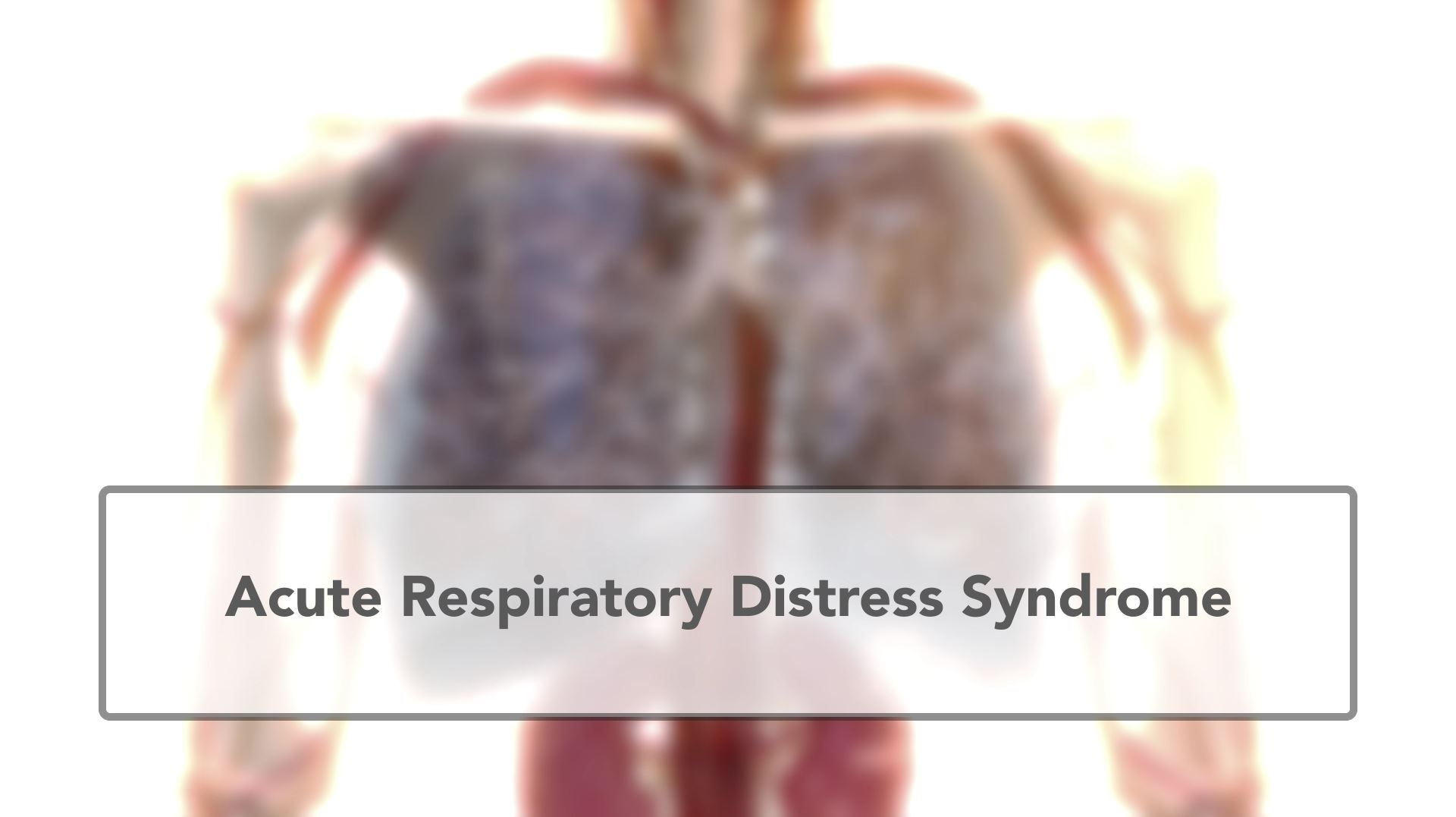 ARDS acute respiratory distress syndrome | Faron